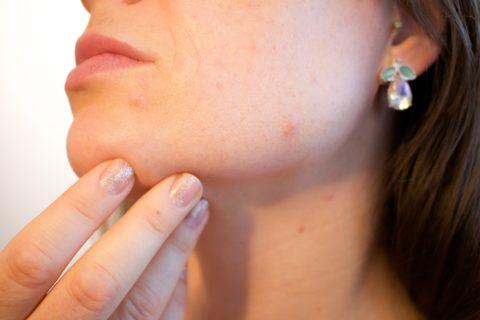 Mediestetik – pomůžeme se zuby i s vyhlazením vrásek!